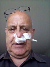 Nosebleed, stage 2